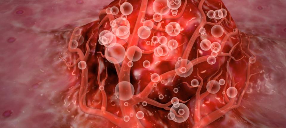 Microsfere radioactive – un tratament revoluţionar împotriva cancerului