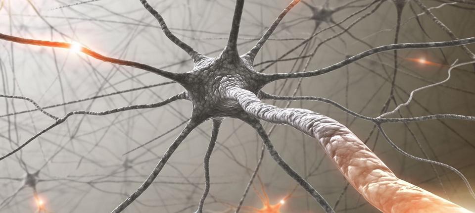 """Glutamatul ,,arde"""" neuronii"""